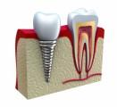 Dental Implants Plr Articles