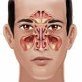 Sinus Infections Plr Articles v2