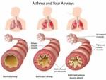 Asthma Plr Articles v2