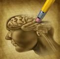 Alzheimer Plr Articles