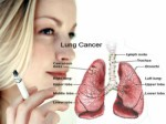 Cancer Plr Articles v2