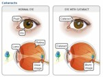 Cataract Plr Articles