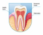 Gum Disease Plr Articles