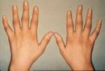Arthritis Plr Articles v6