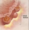 Diveticulitis Plr Articles