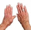 Arthritis Information Plr Articles