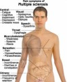 Multiple Sclerosis Plr Articles v3