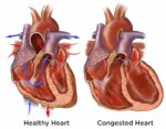 Congestive Heart Failure Plr Articles