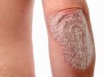 Psoriasis Plr Articles V2