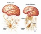 Alzheimers Disease Plr Articles