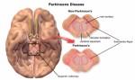 Parkinson Disease Plr Articles
