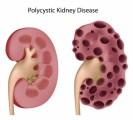Kidney Disease Plr Articles